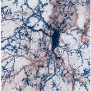 Eine Aufnahme von Neuronen und multifunktionale Gliazellen, sogenannte Mikroglia