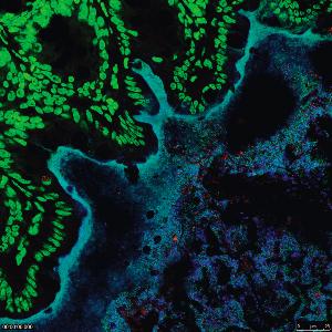 Darm mit Schwarm: Bakterien eines Modell-Mikrobioms (türkis/blau) bevölkern den Darm einer Maus. Dessen Innenwand mit den Epithelzellen ist grün angefärbt.