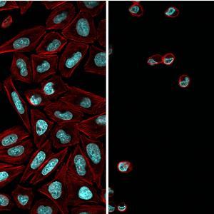Mit dem lichtempfindlichen Hemmstoff behandelte Krebszellen (rot: Aktinzytoskelett; cyan: DNA) nach Bestrahlung mit Blaulicht (Bild1) und ohne Bestrahlung (Bild 2).
